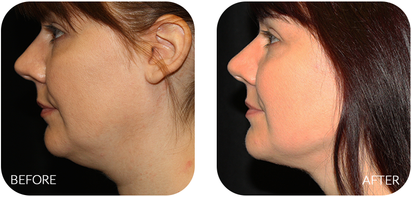 separation shoes 96d0f c732c What is Neck and Jowl Liposuction